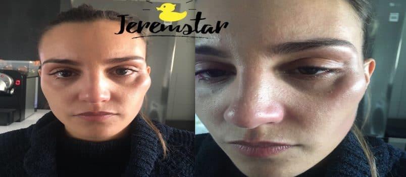 Lydia (#SS11): Elle donne enfin de ses nouvelles après son agression!