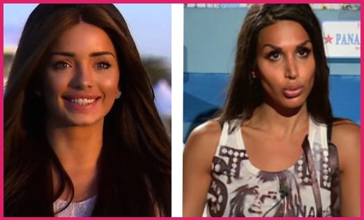 Somayeh ( LesAnges7) VS Aurélie ( LMET)  Découvrez qui a le plus abusé de  la chirurgie esthétique selon le public! 4d47679ee17